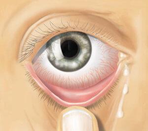 Осмотр глаз