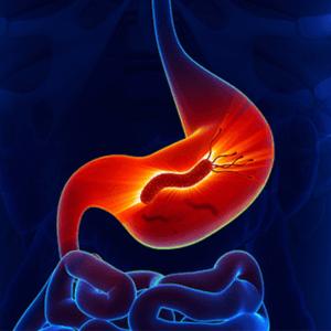 Воспаление стенок желудка