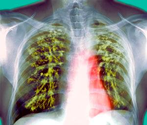 Туберкулез под запретом