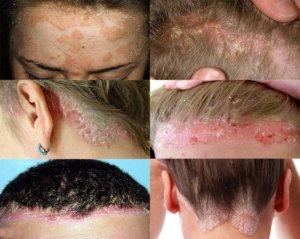 Симптоматика псориаза на голове