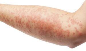 Наличие дерматита