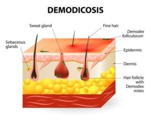 Наличие демодекоза