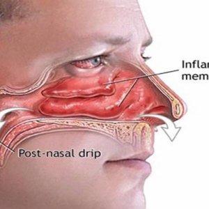 Чем снять заложенность носа: причины воспаления и методы устранения