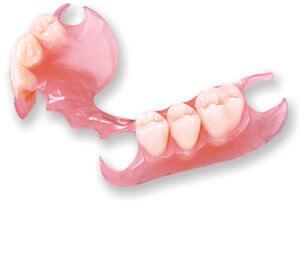 Съемные нейлоновые зубные протезы: отзывы, виды, особенности