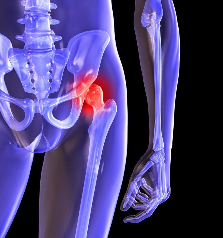 Эндопротезирование тазобедренного сустава в витебске