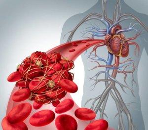 Тромб в легочной артерии: этиология болезни, риски, лечение