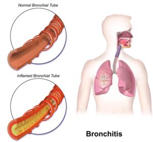Осложнение бронхитом