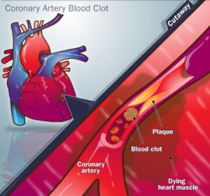 Картина инфаркта