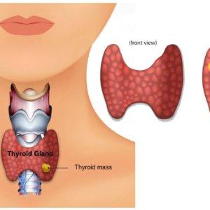 Узелки на щитовидной железе: симптомы и особенности лечения