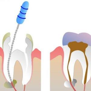Что такое депульпирование зуба: детальное описание процедуры