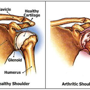 Деформирующий артроз плечевого сустава: лечение нетрадиционной медициной