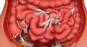 Спайки в кишечнике