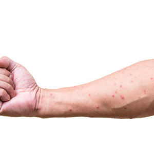 Ветрянка у взрослых мужчин: последствия после протекающего заболевания