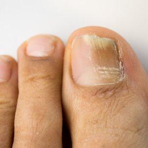 Ногтевой грибок на ногах: лечение, принцип заражения, особенности