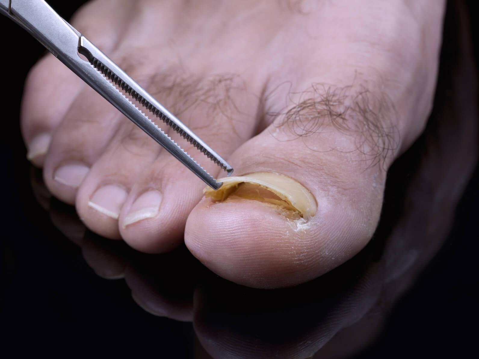 Опасность заражения грибком ногтей