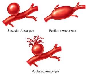 Виды аневризмы