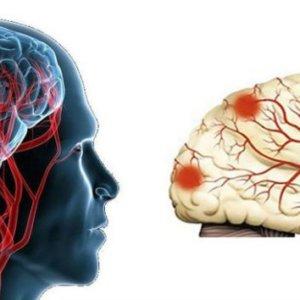 Энцефалопатия сложного генеза: вся важная информация о недуге