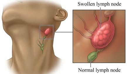 Как выглядят воспаленные лимфоузлы на шее и о чем они сигнализируют
