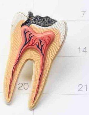 Как убить зубной нерв в домашних условиях: способы, последствия
