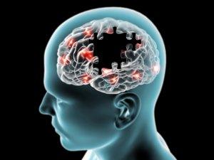 Болезнь альцгеймера история возникновения