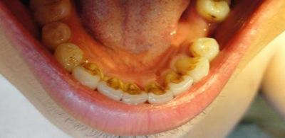 Камни на зубах: причины и способы избавления