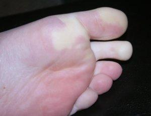 Омертвение пальцев