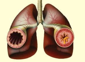 Аллергический бронхит: симптомы и варианты лечения