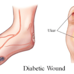 Диабетическая ангиопатия нижних конечностей