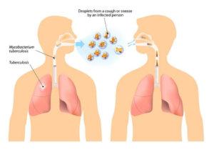 Туберкулез на фото
