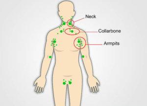 Лимфатические узлы на теле человека: где находятся и для чего нужны