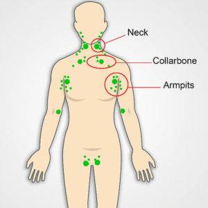 Лимфатические узлы человека