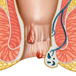 Причины появления геморроя у мужчин, симптомы и лечение опасной болезни