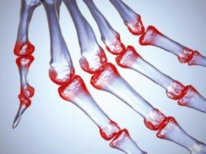 Развитие артрита