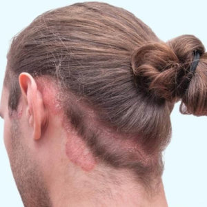 Себорея волосистой части головы: лечение различными способами