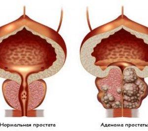 Как выглядит аденома простаты