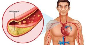 Скопление плохого холестерина