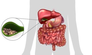 Боли при холецистите: схема лечения, осложнения, профилактика