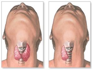Щитовидная железа удалена: последствия и возможные осложнения