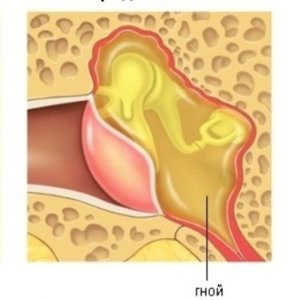 Как протекает острый средний отит, лечение стадий патологии