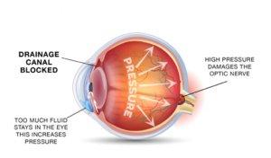 Во время глаукомы препарат запрещен