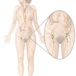 Паховые лимфоузлы у женщин: расположение, симптомы и терапевтическое воздействие