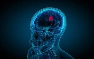 Новообразование в головном мозге