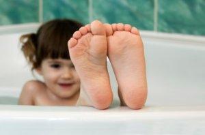 Плоскостопие в детском возрасте