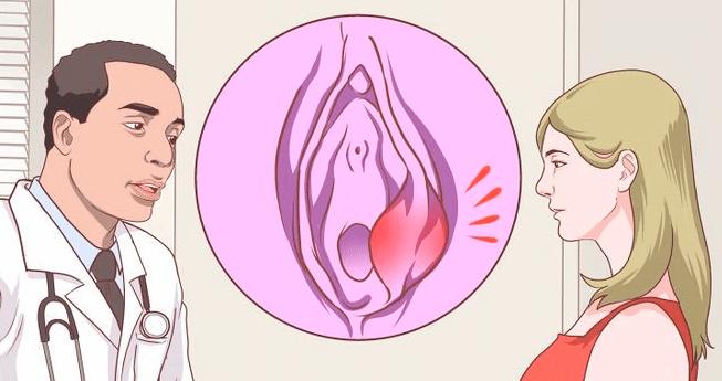 Воспаление бартолиновых желез