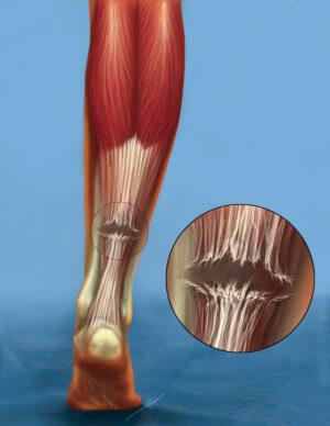 Разрыв сухожилия
