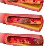 Как выглядит тромб