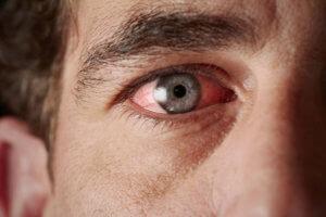 Чем лечить конъюнктивит у взрослых — эффективные методы терапии