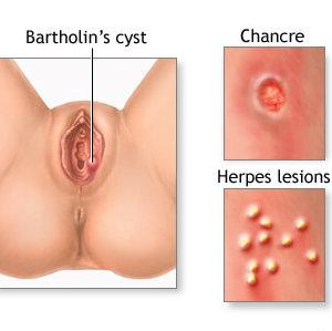 Классификация язвочек на половых губах