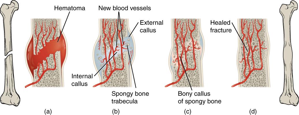 Срастание кости
