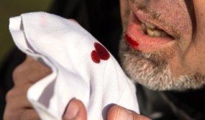 Кашлять кровью при повреждении внутренних органов